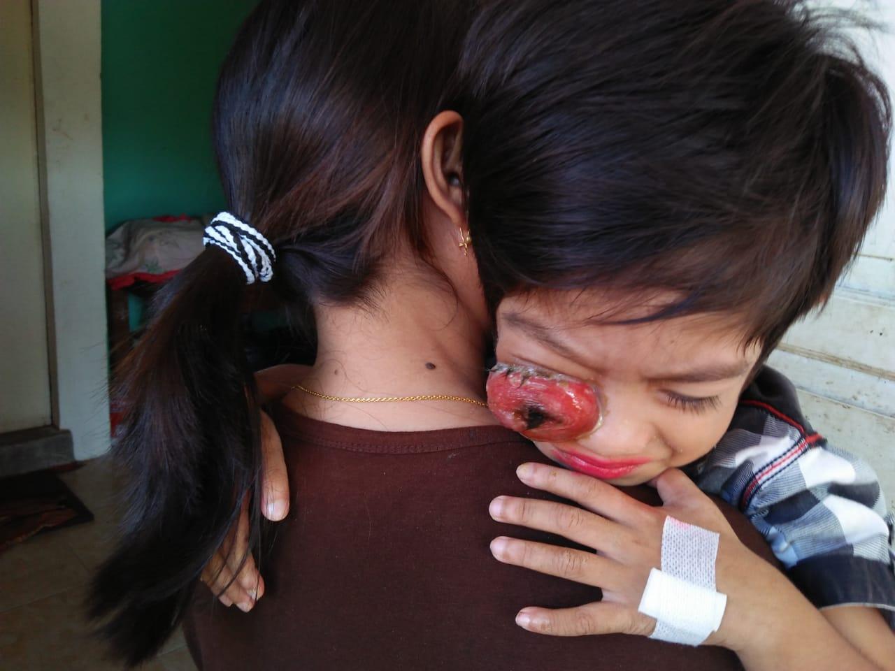 Polres Mentawai Bersama Pengurus Pramuka Serahkan Bantuan Kepada Wahyu Penderita Penyakit Tumor di Mata