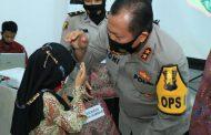 Polda Sumbar Gelar Operasi Bibir Sumbing di RS Bhayangkara Padang