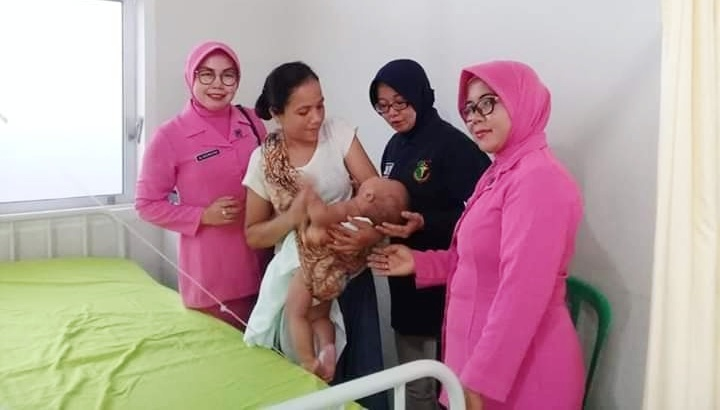 Jelang HUT Bhayangkara 73, Polres Mentawai Laksanakan Operasi Bibir Sumbing